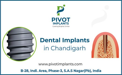 Dental Implants in Chandigarh