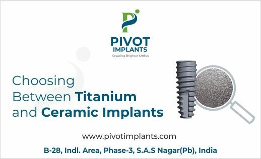 Choosing Between Titanium and Ceramic Implants