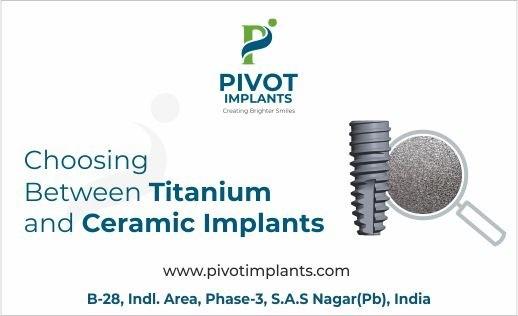 Choosing Between Titanium and Ceramic Implants