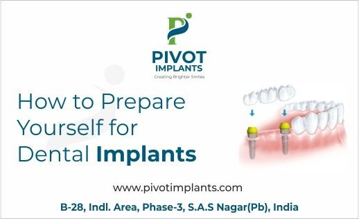 How to Prepare Yourself for Dental Implants